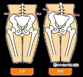産後の骨盤は不安定なので腰痛や肩こり、頭痛の原因になります