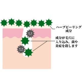 ハーブピーリング成分が毛穴に入り、菌や炎症を抑えます。アトピー肌・ニキビ肌が改善されます。