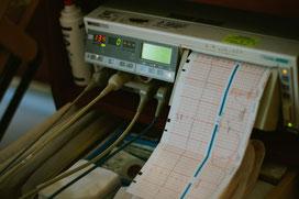 correas, monitorización fetal en el embarazo y parto