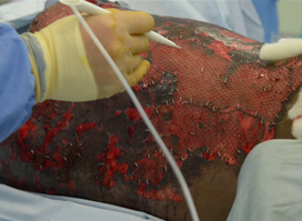 Vivostat sur patient brûlé
