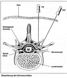 Schematische Darstellung eienr Spritze an die Nervenwurzel