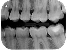 Beispiel einer digitalen Einzelaufnahme (Dürr Dental)