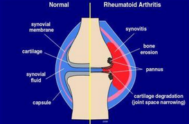 Artrite reaumatoide