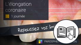 ParoSphère Formation | Formation Elongation coronaire