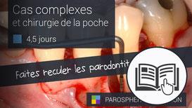 ParoSphère Formation | Formation Cas complexes et chirurgie de la poche