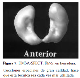 pielonefritis, ureterohidronefrosis, hidronefrosis, itu,ITU, disfuncion vesical, obstruccion infravesical