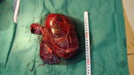 脾臓の血管肉腫