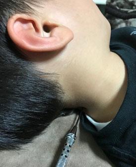 小牧 鍼灸 鍼治療 小児はり