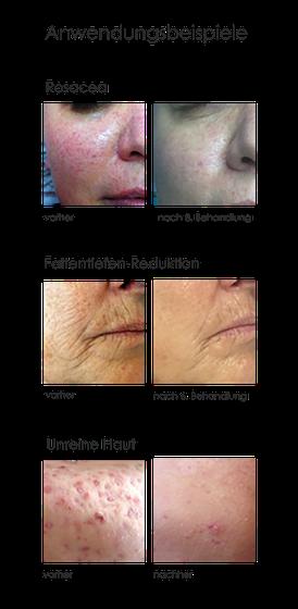 Ergebnisse und Erfahrungen von Ultraschallbehandlungen im Gesicht