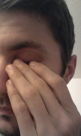 brennende Augen (Trockene Augen Symptome, Sicca Syndrom)