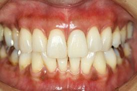 歯茎再生で解決