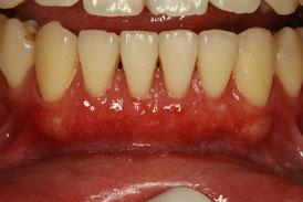 歯茎再生後