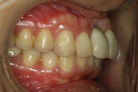 歯茎が下がってしまっています.