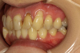 歯茎再生の前