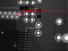 断線箇所2 X線写真図解