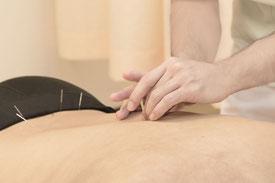 鍼治療の例