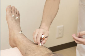 お灸治療の例