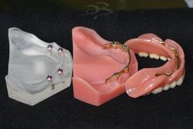 Implantat-Steg-Versorgung
