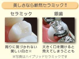 八戸市 くぼた歯科医院 セラミック 安い おすすめ