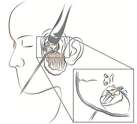 Intervention de neurotomie rétrogassérienne par voie sous-temporale