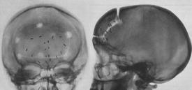 Clichés radiologiques post-topectomie