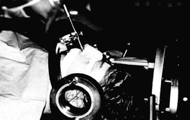 Installation d'un patient lors d'une hypophysiolyse par injection d'alcool avec mise en place d'un cadre de stéréotaxie et du trocart par voie trans-sphénoïdale