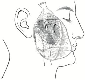 L'intervention de W. Rose permettant d'accéder au foramen ovale après dissection du nerf mandibulaire. Un fil traverse le nerf, le muscle temporal est récliné vers le haut tandis que l'arcade zygomatique l'est vers le bas