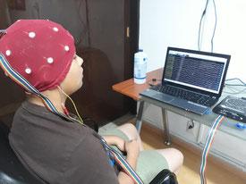 Fig. 3. Se muestra la gorra que utilizamos para realizar el mapeo cerebral. Cada uno de los botones blancos es un punto de la cabeza en donde se hace el registro de la AEC. Al fondo se observa un equipo para realzar el mapeo.