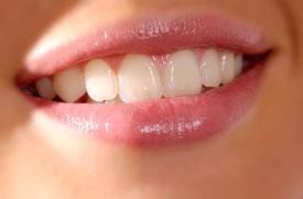 Zahnfleischbehandlung, Zahnarzt Vallendar, Dr. Heike Wickop-Karber & Franz Eickhoff