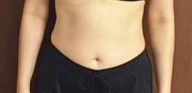 DNAパーソナル痩身3ヶ月コース モニターさんのお腹途中経過