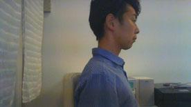 奈良県香芝市頚椎症の男性