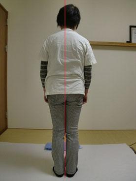 しんそう療方を受ける前の、腰痛、変形性膝関節症の方の写真