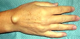Bild:  Handrückenseitiges Ganglion