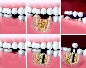 Vergleich Brücke vs. Implantat
