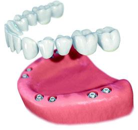 festsitzender Zahnersatz auf Implantaten
