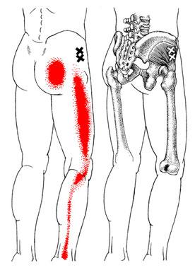 Schema bei ausstrahlenden Schmerzen der Gesässmuskulatur