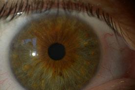 Augendiagnose Irisdiagnose - www.naturheilpraxis-binnursavas.de