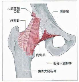 腸骨大腿靭帯と恥骨大腿靭帯の癒合部は脆弱
