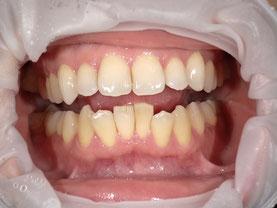 八戸 ホワイトニング くぼた歯科 おすすめ