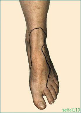 腓骨神経麻痺の症状