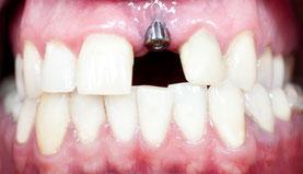 Frontzahn-Implantat