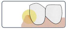 歯と歯肉の境目