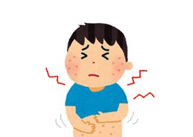 イメージイラスト:皮膚の症状:皮膚に発疹ができている様子。