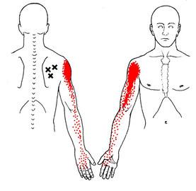 Schema bei ausstrahlenden Schmerzen der hinteren Schultermuskulatur