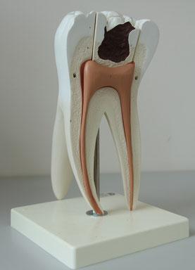 Parodontalbehandlung - Zahnarztpraxis & Implantologie Dr. med. dent. Malte Uhrigshardt Tornesch im Kreis Pinneberg