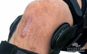 Rehabilitación, tratamientos post-quirurgicos, post operatorio, rodilla, rotura, osteopatía, médico