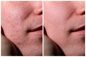 Секреты ретуши кожи