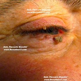 Fibromi -verruche trattati senza bisturi