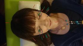 はり灸アロマ心音 美顔鍼+プラスはり(12本)cocon-nagoya