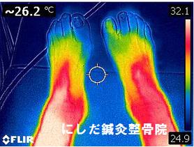 星状神経節レーザー照射